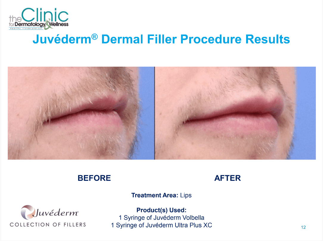 Juvederm before and after images