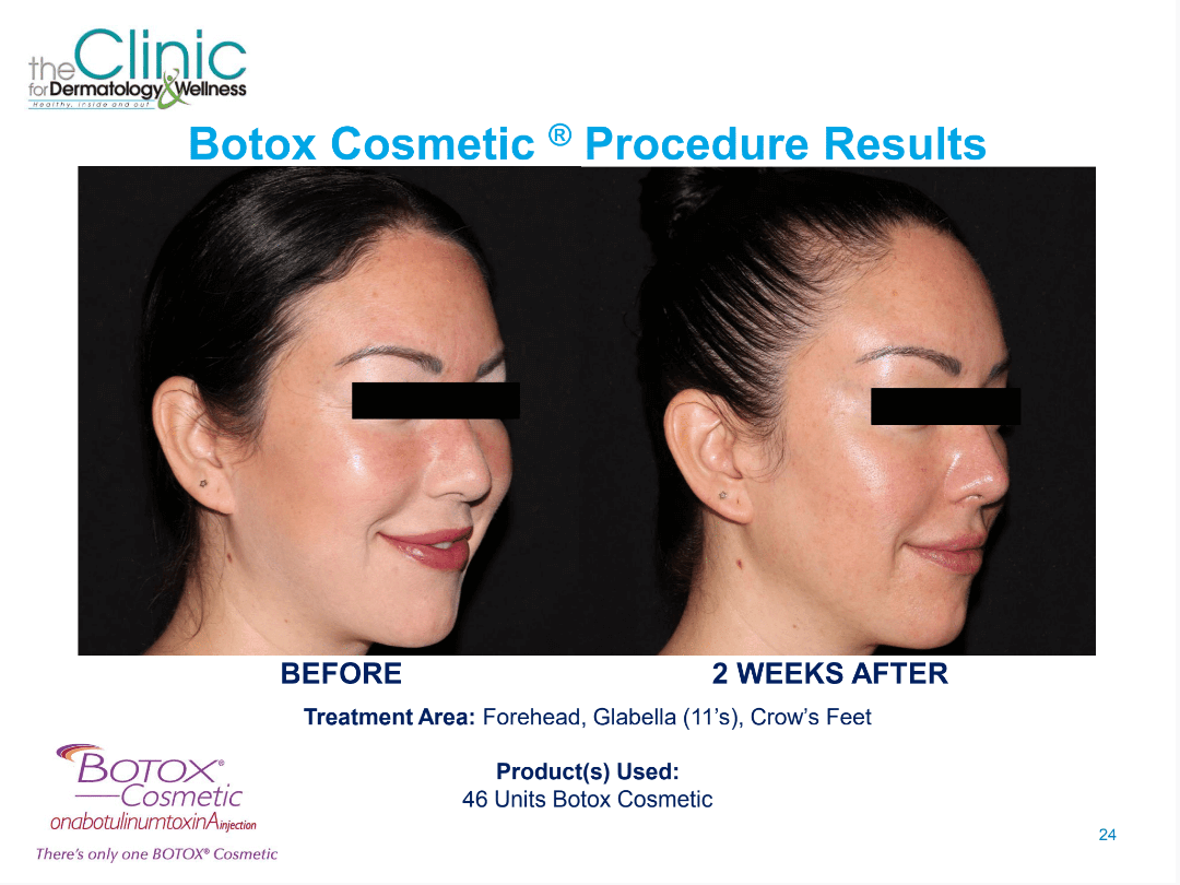 Botox before and after images