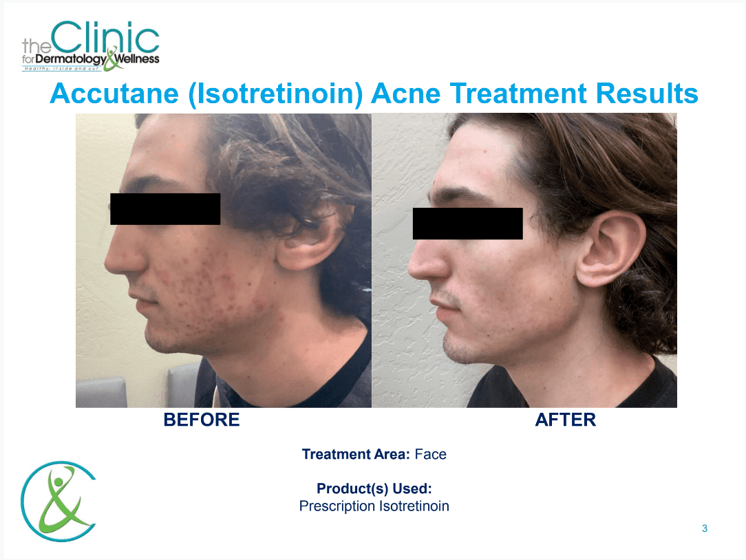 Accutane before and after images