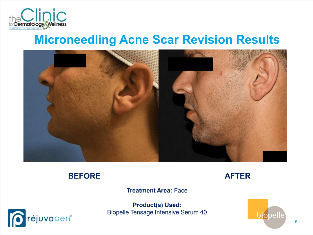 Microneedling before and after images