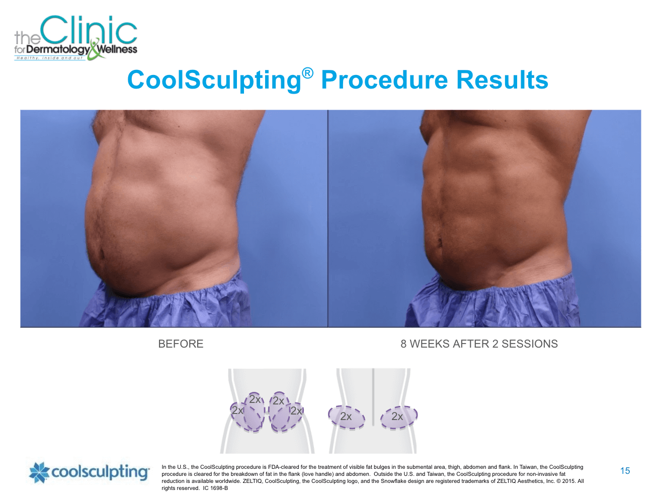 CoolSculpting before and after images